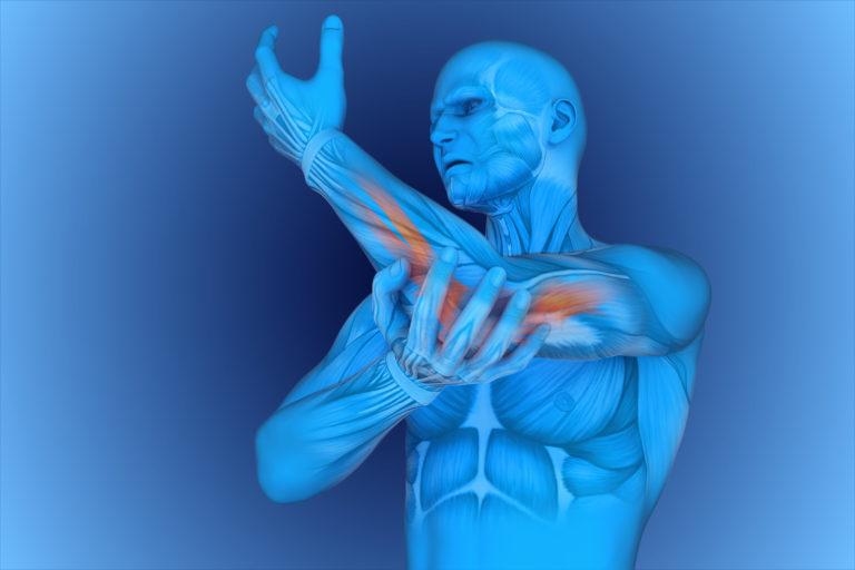 3D rendering of tennis eblow muscle areas