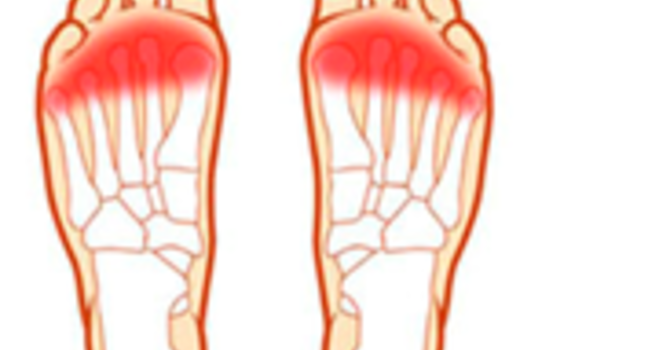 Why are My Toes Numb? image
