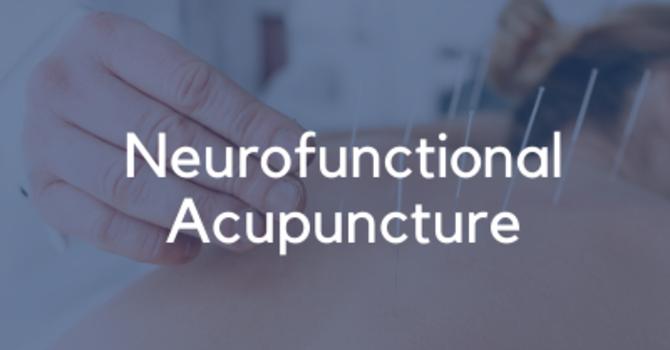 Neurofunctional Acupuncture